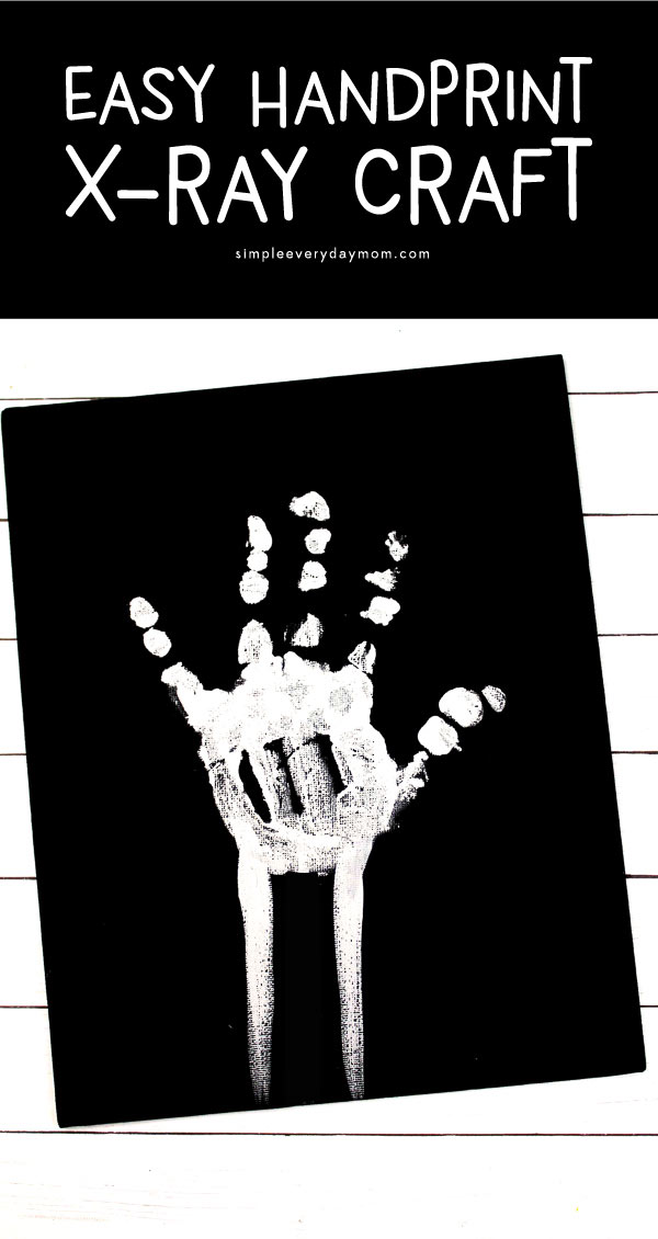 X Ray Handprint Craft For Kids #kidscrafts #preschool #kindergarten